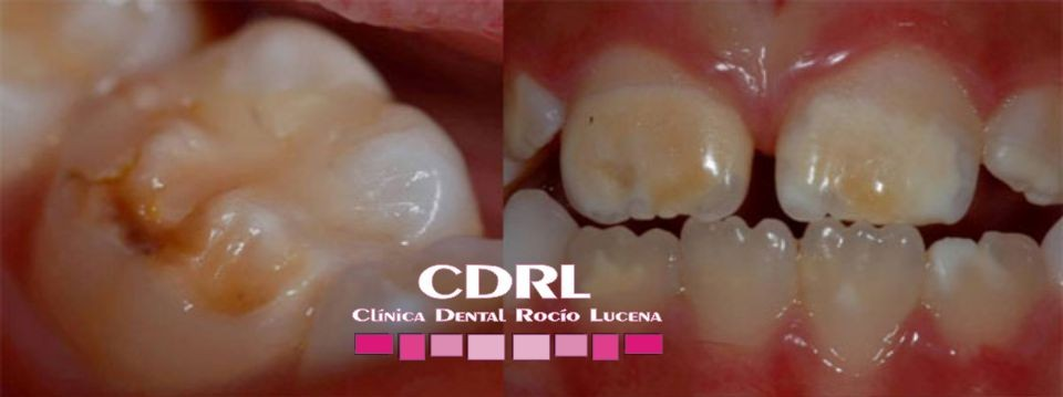 Dentista Infantil Archives Clinica Dental Rocio